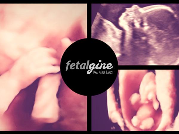 fetogine-10